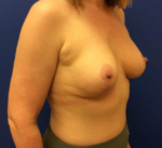 Breast Enhancement (Breast Lift with Implants)