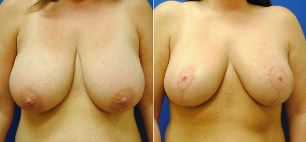 Before & After Breast Reduction Photos
