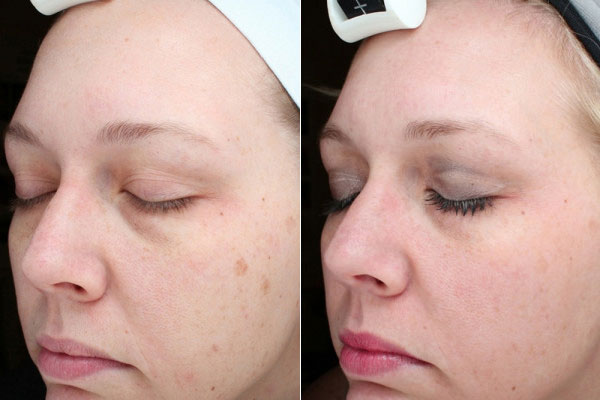Before & After Laser Treatments Photos