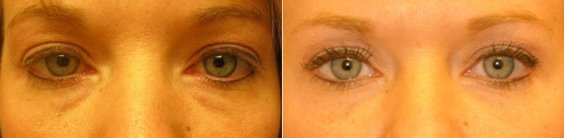 Before & After Teamine Eye Complex Photos